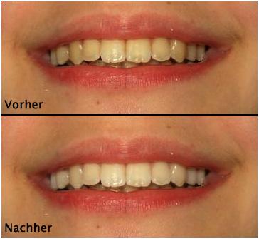 Zähne Bleichen